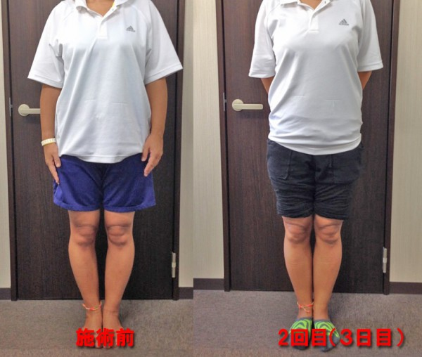 hp-nao-beforeafter